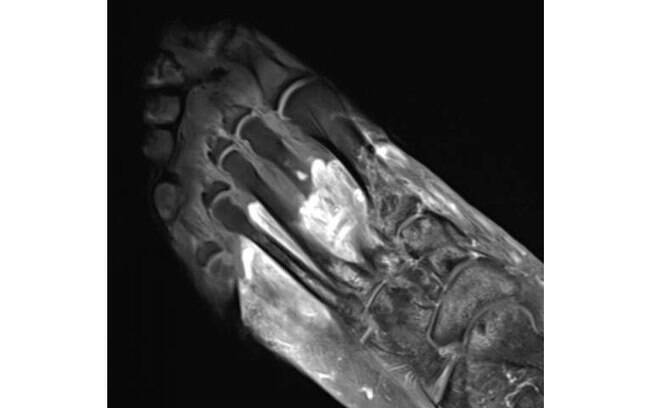 Essas imagens ajudam os profissionais a compreender se um doente pode ter sintomas musculoesqueléticos após a Covid-19