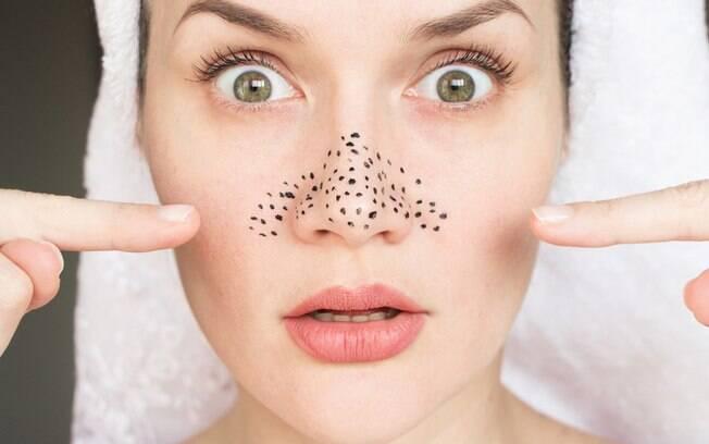Cravos no rosto: 7 dicas para se livrar do problema de uma vez por todas