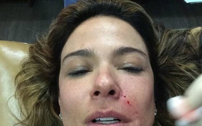 Luciana Gimenez realizou Lifting de Vampiro por estética e beleza