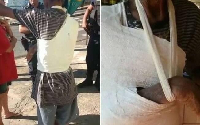 Idoso de 61 anos foi engessado por cima da roupa em UPA de Minas Gerais, no bairro Pompeia