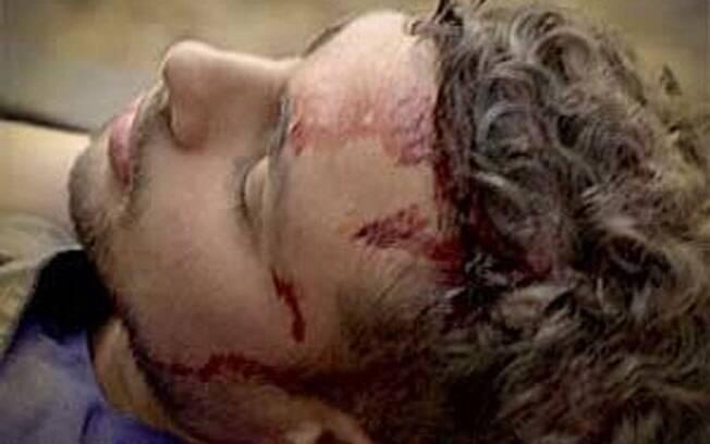 Jorginho (Cauã Reymond) sofre um acidente em Avenida Brasil