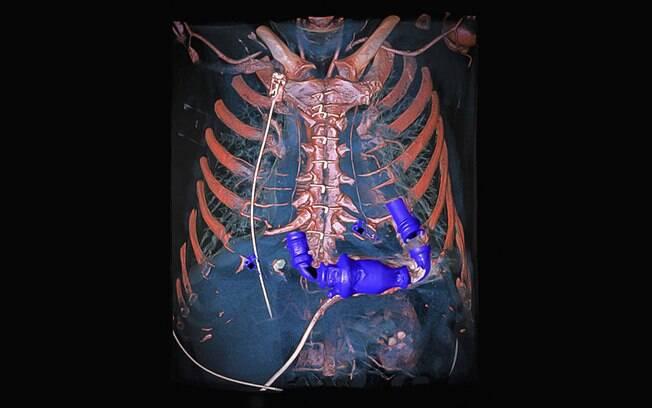 Imagem mostra uma bomba cardíaca mecânica dentro de um tórax
