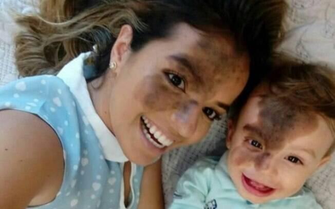 Camila encheu o Instagram de amor ao publicar a foto em que aparece com a reprodução da marca de nascença do filho