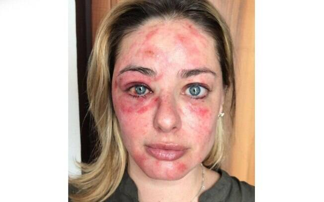 Maria Antonia Russi após acidente