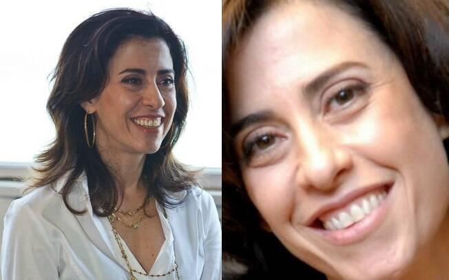 Fernanda Torres também opta por não corrigir a pequena imperfeição no sorriso