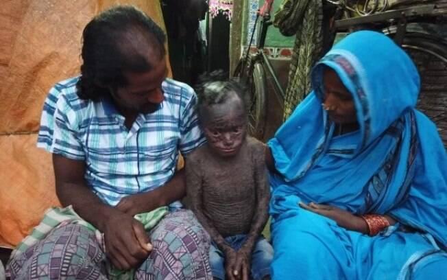 Pais de Jagannath lamentam não ter dinheiro suficiente para custear tratamento do filho