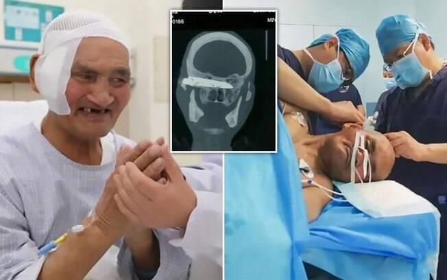 A faca foi retirada no Hospital Shandong Qianfoshan, na China, que descreveu o caso como um 'milagre'