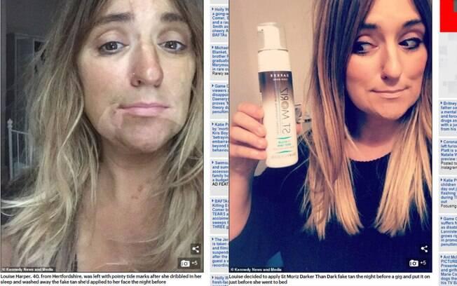 Louise Harper dormiu depois de fazer bronzeamento artificial e acabou ficando com uma mancha de 'presas' no rosto
