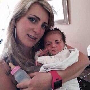 Imagem da bebê viralizou nas redes sociais