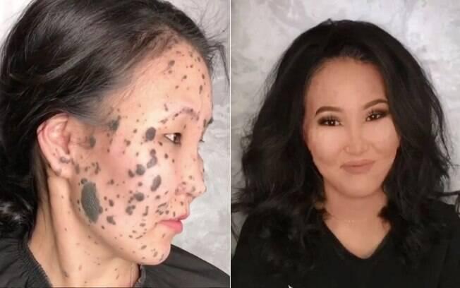 Maquiadora cobre manchas na pele de mulher russa e reação dela ao ver novo visual é empolgante