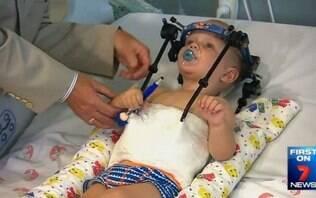 Garoto sobrevive após acidente em que crânio foi separado de coluna - Mundo - iG