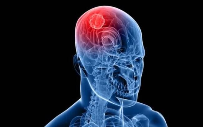 Droga mostrou-se 10 vezes mais potente que as existentes no tratamento de tumores cerebrais