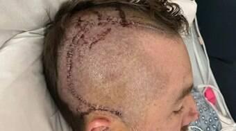 Jogador passa por cirurgia cerebral de emergência após bolada