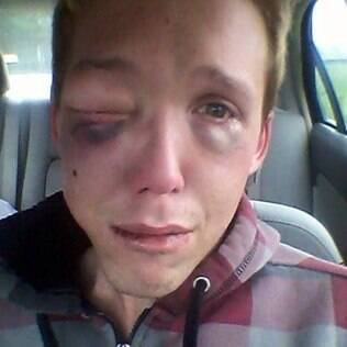 Devin Norman foi agredido nos EUA