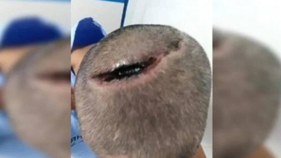 Homem é intubado por complicações da Covid-19 e acorda com corte profundo na cabeça