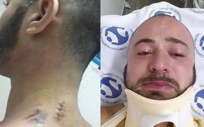 Rodrigo Kirchoff mostrou fotos dos ferimentos em sua rede social