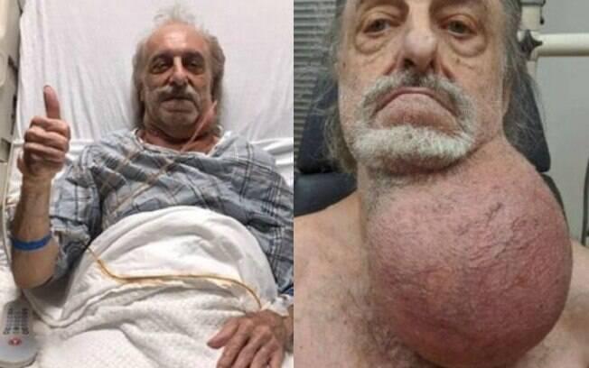 Milton Wingert%2C antes e depois do tumor
