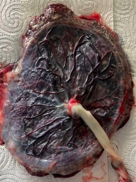 A placenta também é usada para criar algumas impressões, a partir do sangue, conforme conta a parteira
