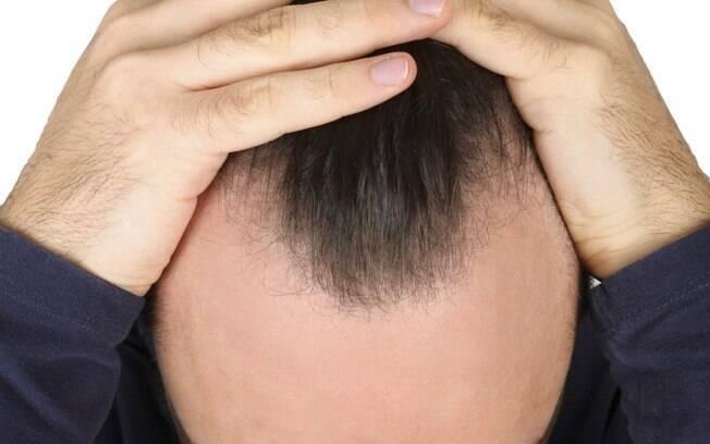Perda de cabelo. Foto: Thinkstock/Getty Images