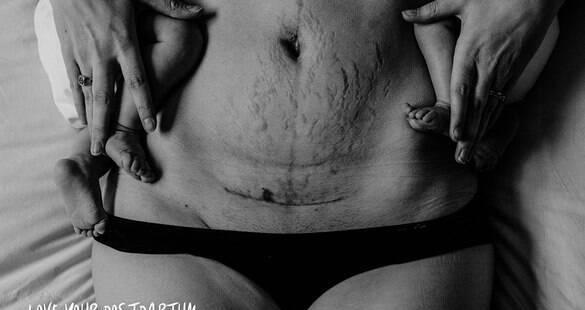Ensaio fotográfico encoraja mulheres a amarem o corpo no pós-parto