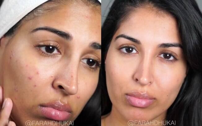 Blogueira mostra antes e depois de usar o creme para assaduras de bebês no truque de como acabar com as espinhas
