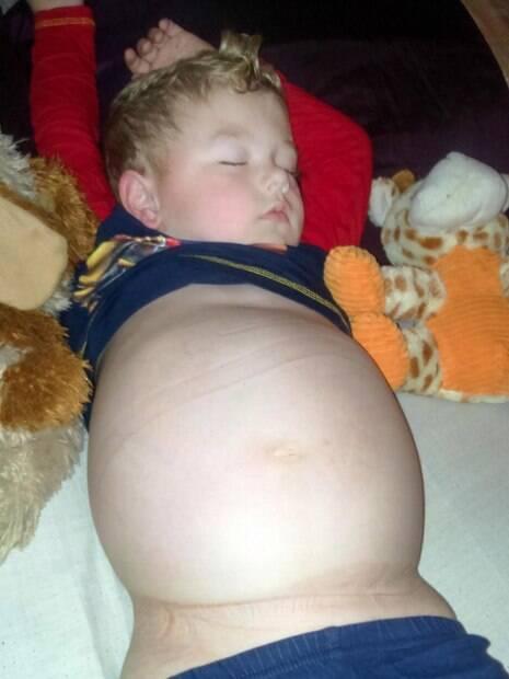 Quando ele tem alguma crise, sua barriga incha muito, esticando sua pele