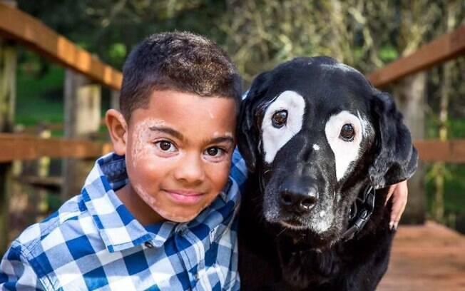 Cão com vitiligo faz menino com a mesma doença se sentir bem