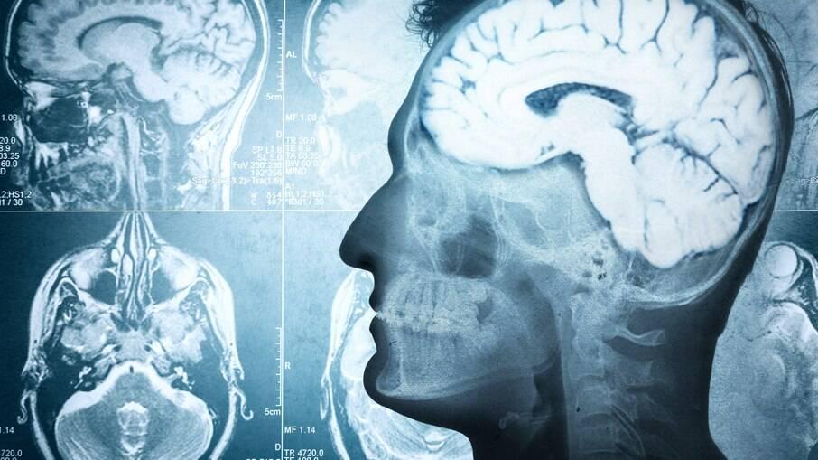 Covid-19 pode afetar inteligência dos recuperados, diz estudo