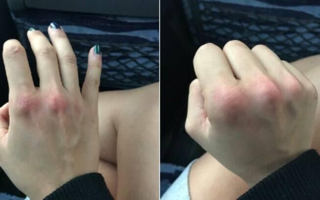 A levantadora de peso postou as duas em sua conta no Twitter com suas mãos avermelhadas após reagir ao assédio