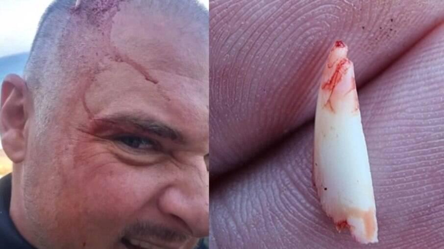 Pescador dente tubarão