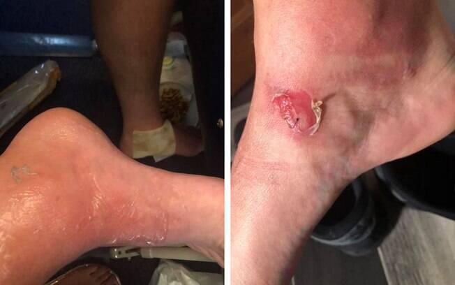 Imagem mostra os ferimentos nos pés do passageiro que foi atingido acidentalmente pela água quente da comissária