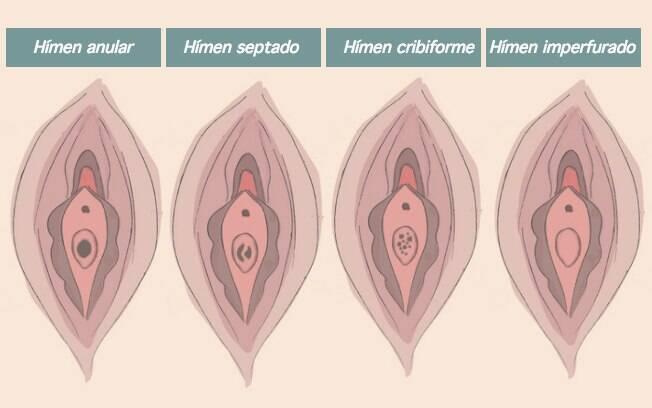 Hímen é uma barreira para a entrada do pênis na primeira relação, mas a dor está mais ligada à falta de lubrificação, desta forma, não necessariamente a mulher vai sentir dor quando for perder a virgindade ou iniciar o sexo com penetração