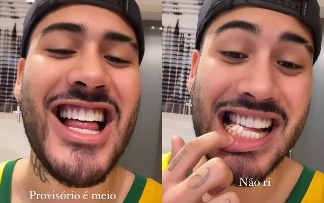 Kevinho mostra suas próteses dentárias provisórias