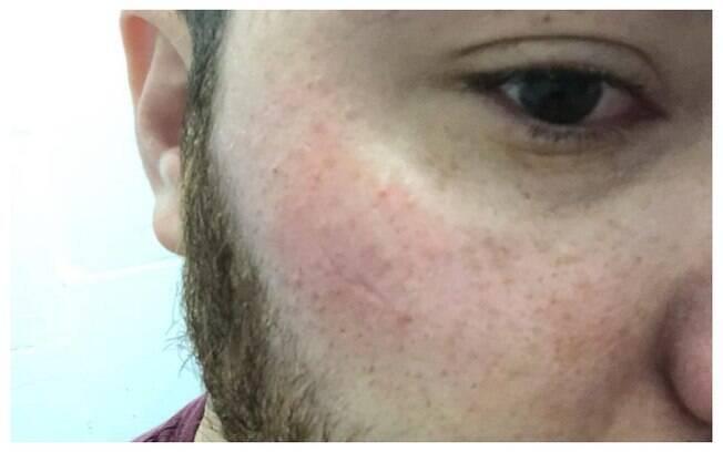 Jovem foi agredido em Goiânia após ser seguido por universitários