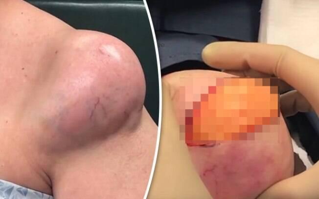 O cisto gigante – um acúmulo de gordura na região do ombro, foi removido em cenas chocantes