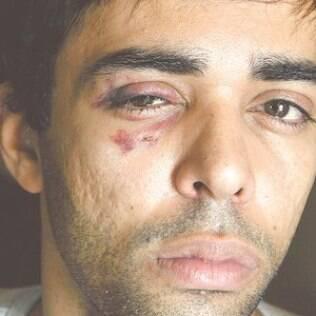 Ator Maxie Maya foi agredido por um desconhecido após deixar uma festa LGBT no centro do Rio de Janeiro