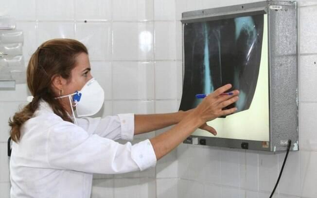 Ações e investimentos globais estão aquém do necessário para acabar com a epidemia de tuberculose, aponta a OMS