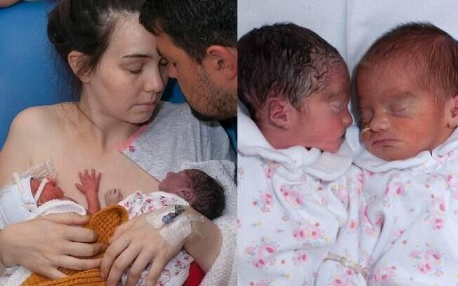 Emma Woodhouse dá à luz bebê natimorto e cuida de filha por duas semanas como se ela estivesse viva