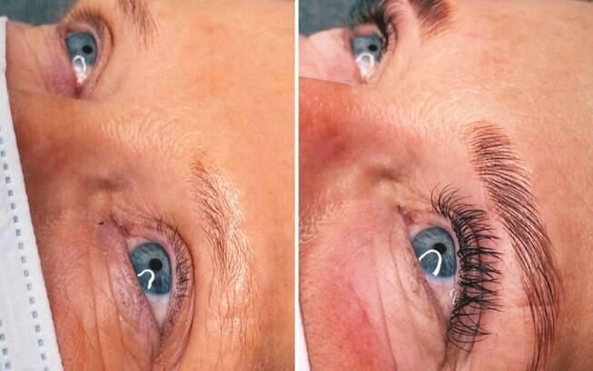 Antes e depois do processo de micropigmentação