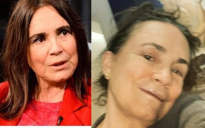 Regina Duarte fala sobre queda em São Paulo
