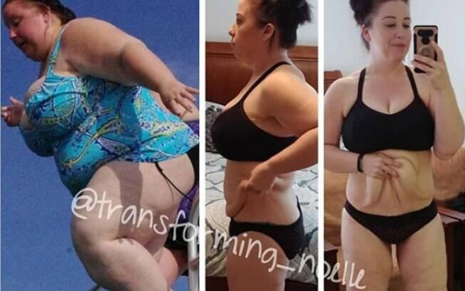 Após ver que era pesada demais para a balança que tinha em casa, Noelle decidiu mudar de vida e venceu a obesidade