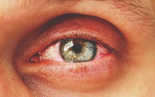 Olhos de paciente com conjuntivite