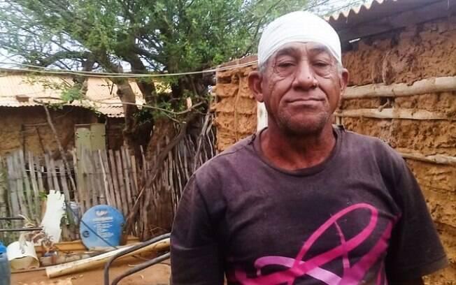 Laurindo Pereira da Silva foi atingido por bala de borracha em ação da Polícia Federal e Militar de reintegração de posse.