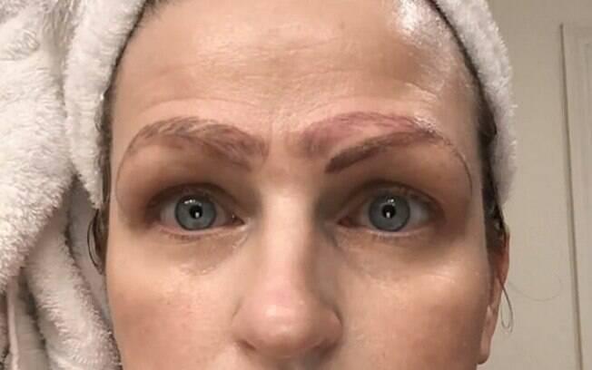 Jami Ledbetter fez um procedimento de microblading que saiu errado e precisou saber como corrigir as sobrancelhas