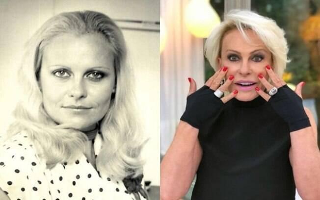 Antes e depois de Ana Maria Braga aplicar botox