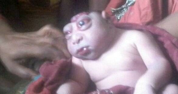 Na Índia, mãe se recusa a amamentar filho que nasceu com condição rara