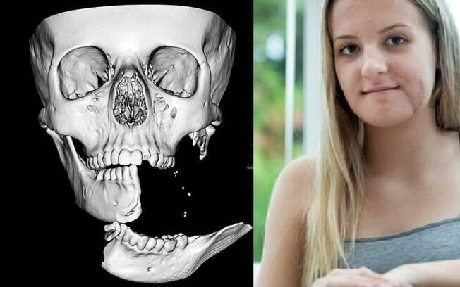 Emily Eccles precisou de reconstrução facial após acidente em cavalo