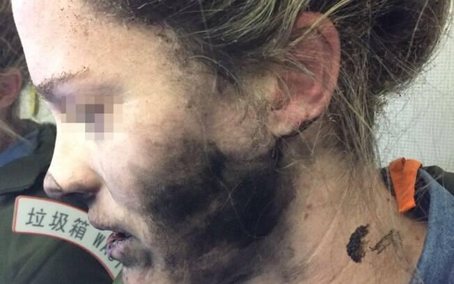 A passageira não identificada teve face e pescoço cobertos por fuligem decorrente da explosão de seu fone de ouvido