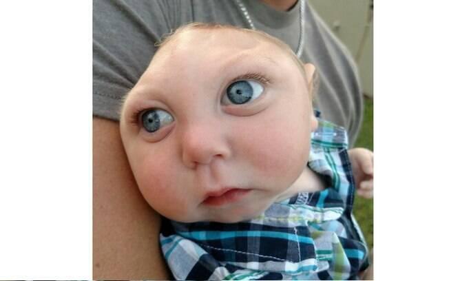 Jaxon nasceu sem parte do crânio e do cérebro