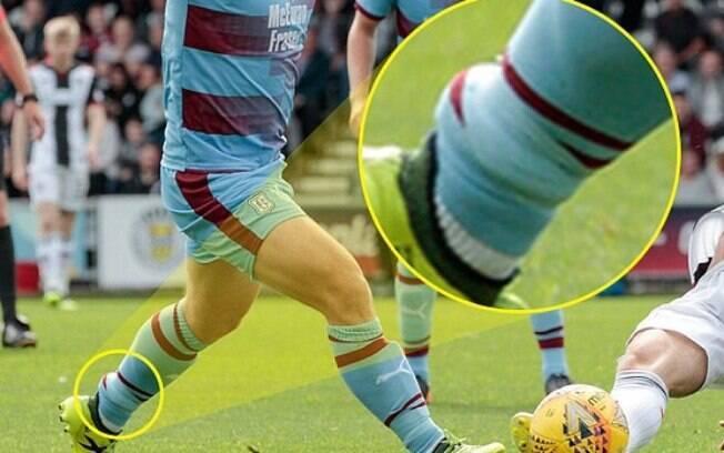 A tornozeleira eletrônica ficou visível durante a partida